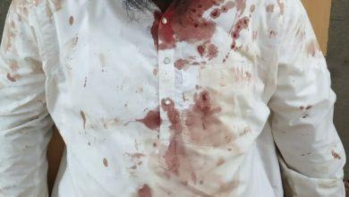 Photo of مؤذن حافظ نصیر کی ناک پرپولیس افسرکا حملہ